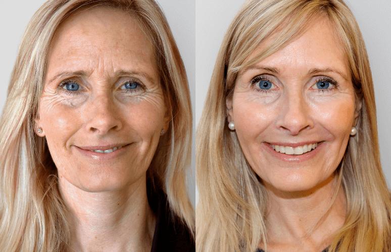 Restylane Skinbooster & Botox