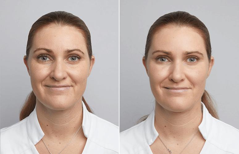 Restylane & Botox