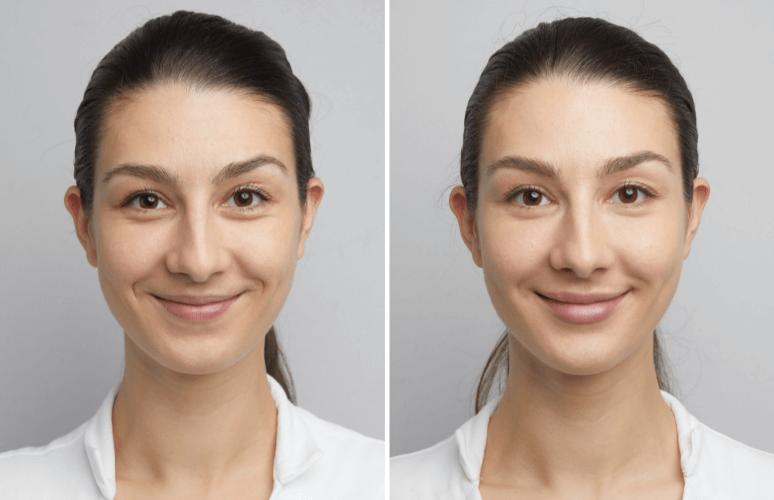 Victoria ønskede symmetri i sit ansigt